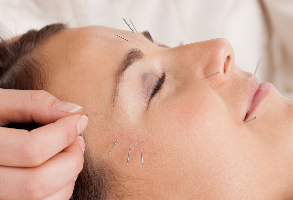 Acupuntura estética corporal e facial