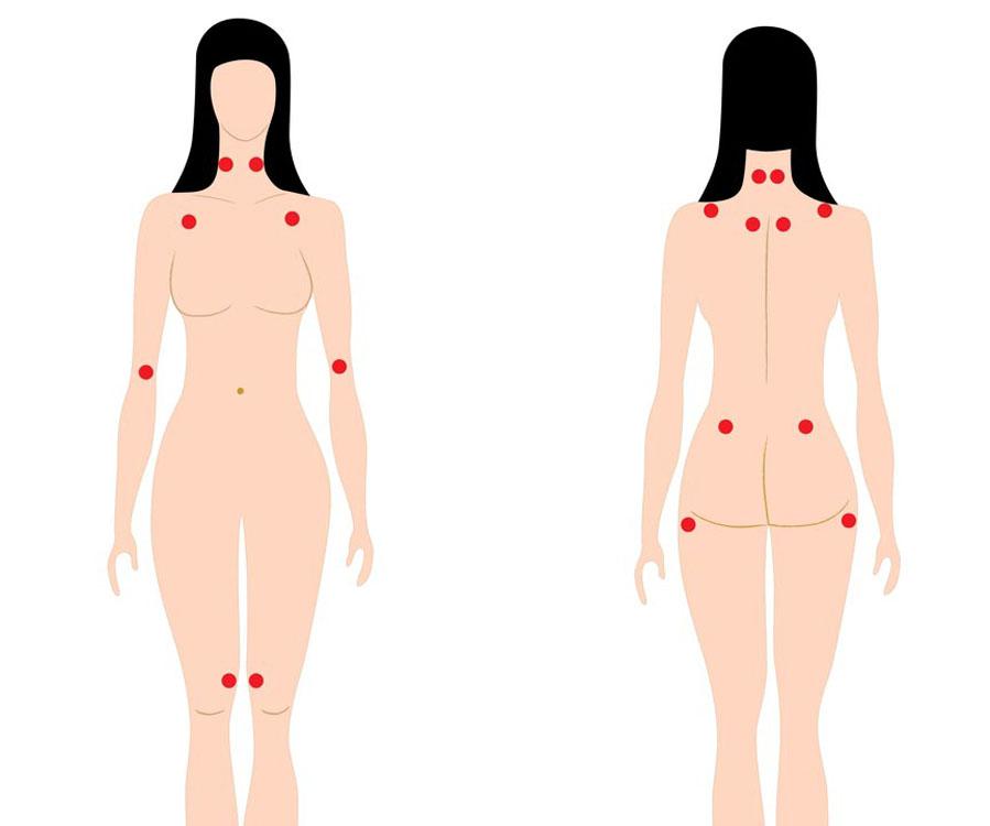 Acupuntura no tratamento da Fibromialgia