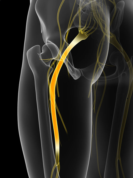 Acupuntura para dor na coluna e nervo ciático