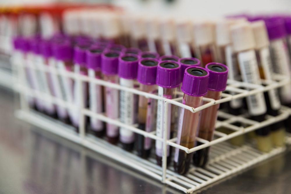 Doação de Sangue:  estoque está no vermelho na Pró-Sangue